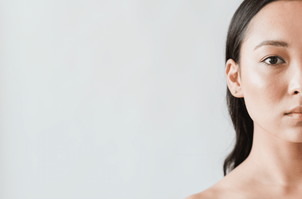 Is it true certain FOODS can make you have ACNE?